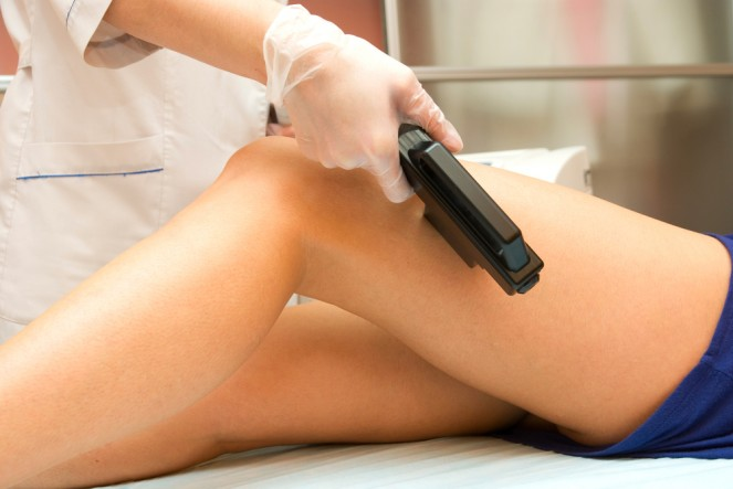 Perfect Treatment Of Varicose Veins